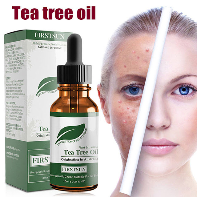 tea tree oil proprietà dove acquistare tea tree oil come usare tea tree oil benefici tea tree oil mariafelicia magno fashion blogger color block by felym consigli beauty beauty tips