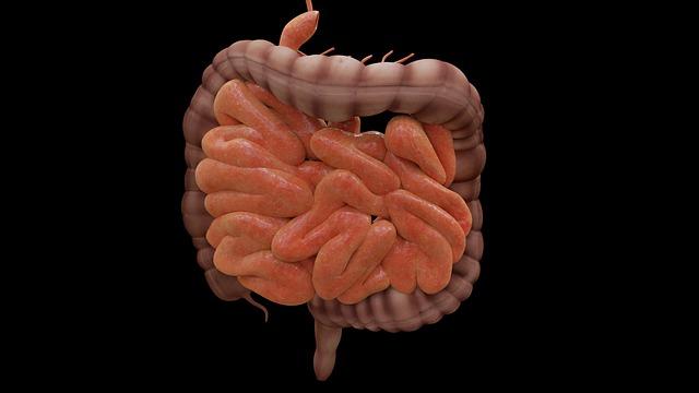 مرض التهاب الأمعاء (IBD)