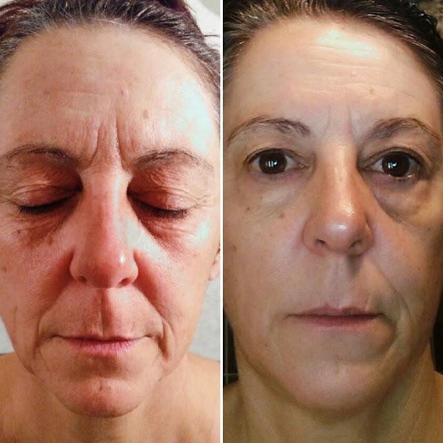 Christelle, 4 semaines après utilisation de nos produits beauté et anti âge.