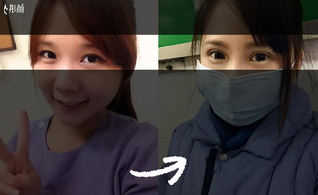 彤顏診所-割雙眼皮-提眼瞼肌