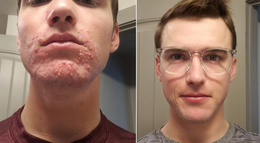 6 tháng điều trị với Accutane liều 40mg/ngày