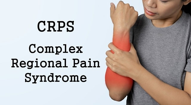 chronic discomfort treatment complex regional pain syndrome crps