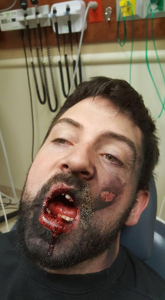 Seorang Lelaki Hilang 7 Batang Gigi Gara-Gara Vape Meletup Di Muka