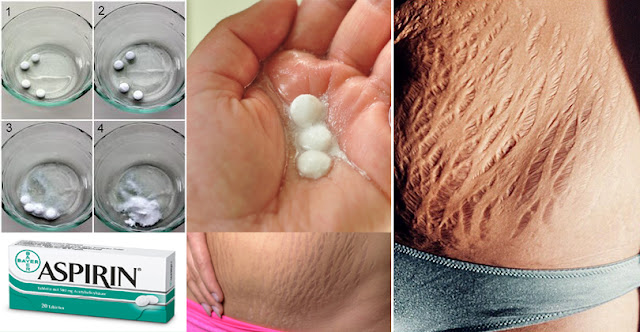 Stretch Marks  Cream Release Date