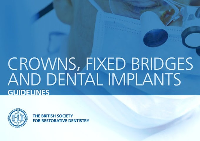 GUIDELINES: Crowns, fixed bridges and dental implants - The british society for restorative dentistry