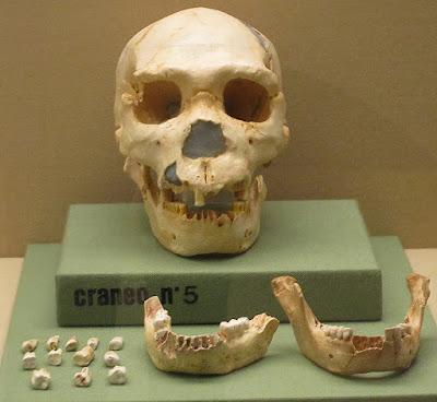 cráneo, Miguelón, Burgos
