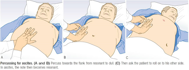 Ascites is a late sign in Heart Failure