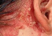Foto Bahaya penyakit Eksim Kering Pada Lengan
