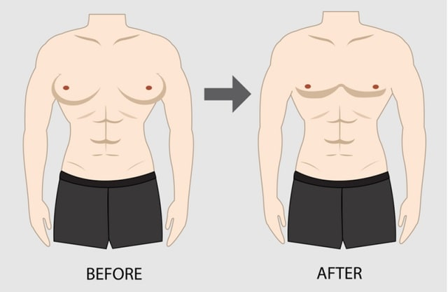 what causes gynecomastia in men male breast enlargement