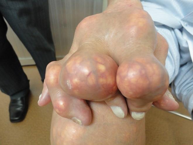 chữa bệnh gout mạn tính bằng thuốc đông y