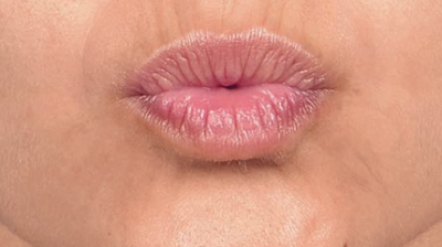 lip lines after treatment with botox
