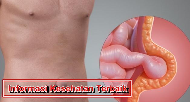 Informasi Kesehatan Penyakit Hernia
