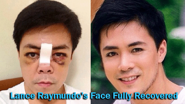 Lance Raymundo's Face Fully Recovered After Got Smashed by a Barbel