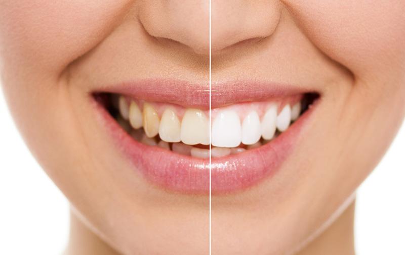 Blanqueamiento dental en Zaragoza