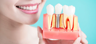 http://whitefielddentist.com/resources/what-is-implant-dentistry