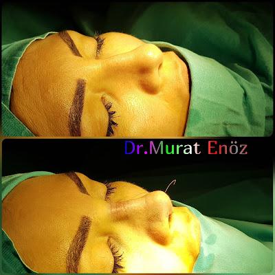 Ethnic Rhinoplasty in Istanbul, Thick Skin Nose Job,