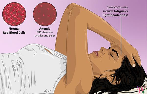 العلاجات المنزلية لفقر الدم animia