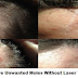 No Surgery Needed To Get Rid Of Unwanted Moles