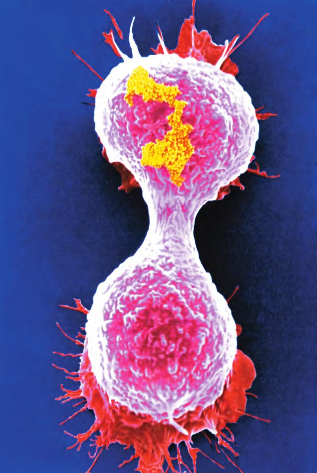 Sel kanker payudara