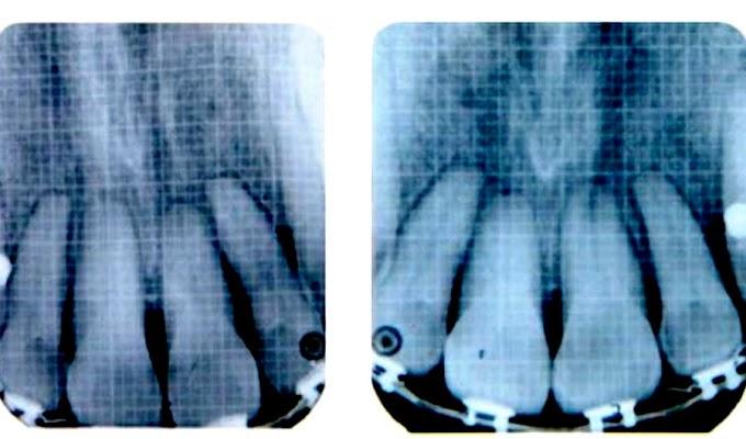 PDF: Intrusión del segmento anterior superior con miniimplantes para eliminar la mordida profunda anterior en maloclusión clase II con compromiso periodontal