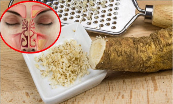 Take This Mixture Of Two Ingredients And Say Goodbye To Sinusitis, Rhinitis, Influenza, Phlegm And Many More