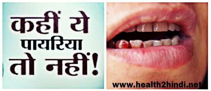 Payriya Ka Ilaj Hindi | Payriya Treatment Ke Desi Totke