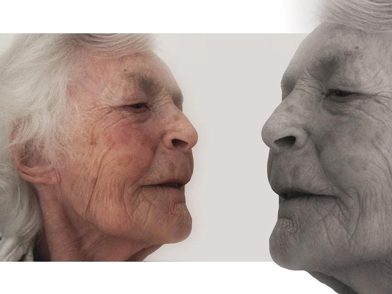 العوامل التى تزيد من خطورة الإصابة بالزهايمر