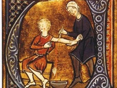 medicina medieval, medicina na idade media, tratamentos crueis da medicina na idade media, cirurgia idade media, cirurgia medieval, tortura, sangria