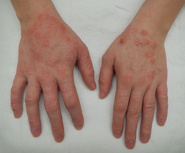Dermatitis And Atopic Dermatitis Symptoms and Causes