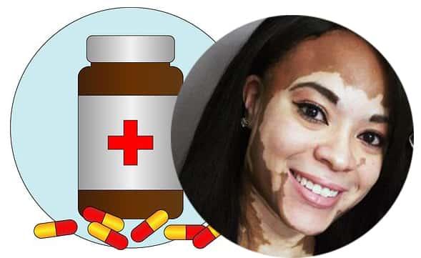 vitiligo plus vitamins