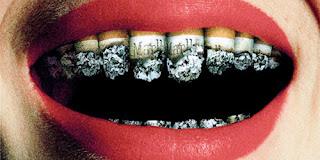 Perawatan Gigi Pada Perokok Berat Dan Peminum Kopi
