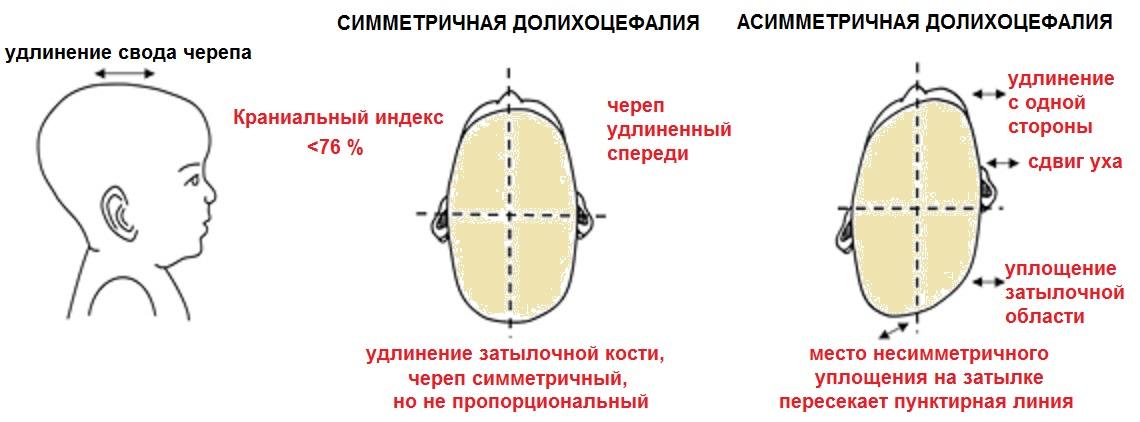сочетание долихоцефалии и непропорционального искривления формы черепа