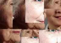 Remèdes naturels aux rides de la peau