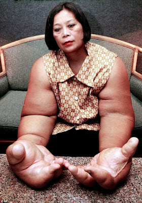 Incredible!! MEET The Woman with the World's Biggest  Hands! [Photos]