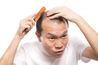 頭皮のフロントエンドの確認をする男性