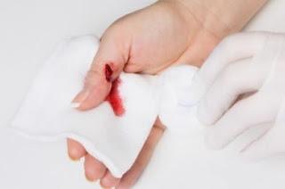 Οξυζενέ στην πληγή: Επιτρέπεται ή όχι;