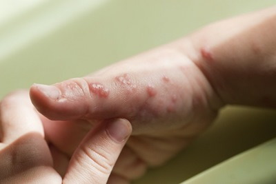 Cara Mudah Mengobati Herpes di Rumah