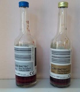 kan kültürü şişesi