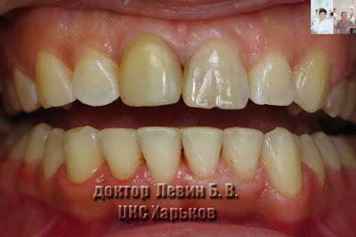 Фото показывает уровень режущих краев зубов и уровень десневого края разных зубов