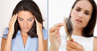 علاج تساقط الشعر طبياً
