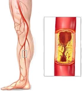 Arterias dañadas y niveles de glucosa altos
