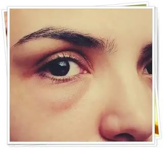 pareri forum remedii naturale cearcane si pungi sub ochi