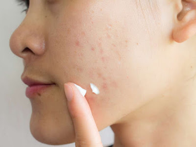 best home remedy for acne overnight