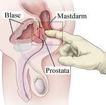 Prostatitis poros)