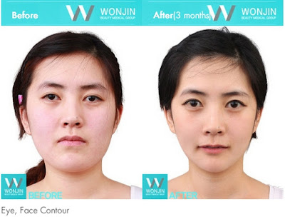 before and after korean celebrities face contouring-3