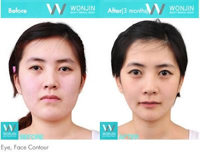 Face recognition korean celebrity surgery