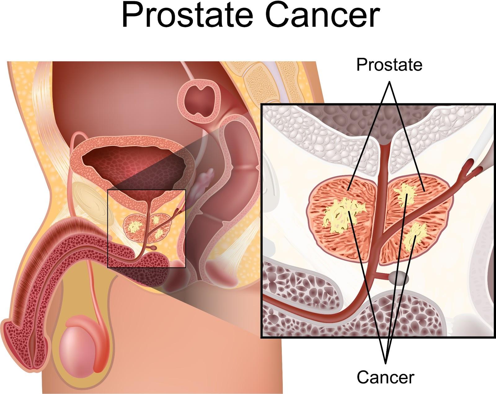 con qué frecuencia eyacular para la salud de la próstata