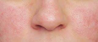 Sabonete caseiro para peles sensíveis