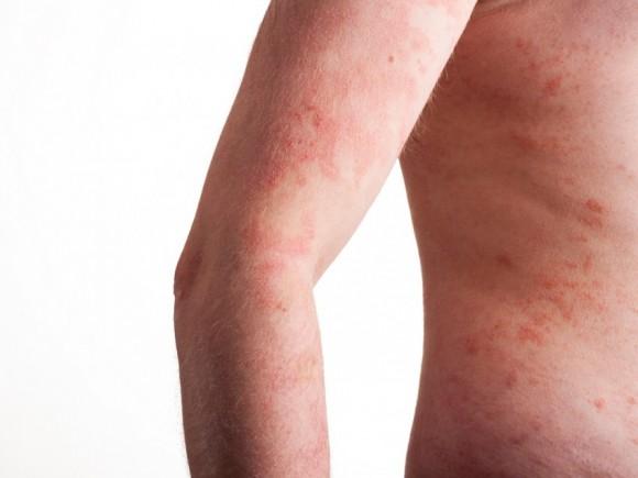El baño en la manzanilla a atopicheskom la dermatitis