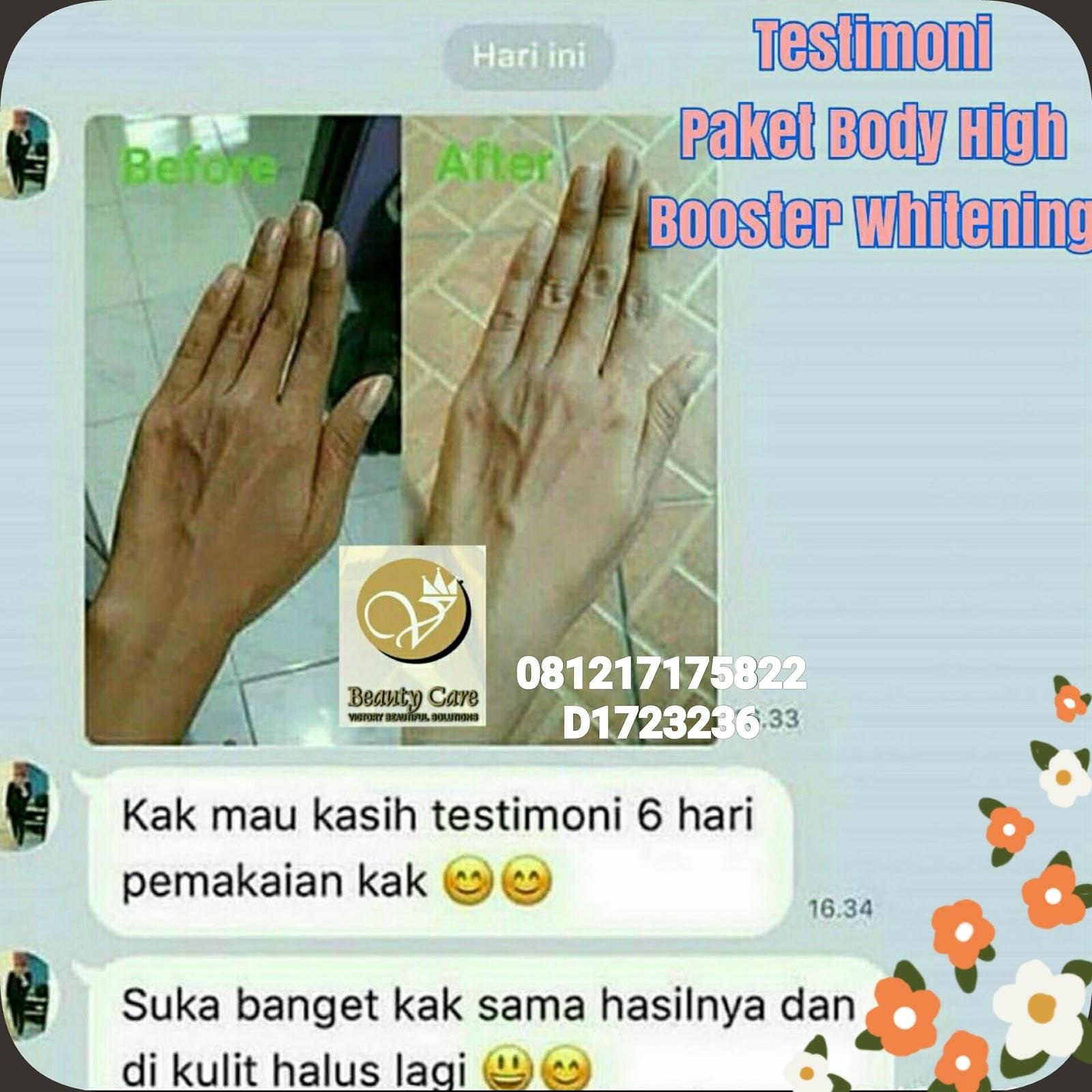 Distributor Utama Victorybeautycare V Beauty Care Ori Bpom Cream Pemutih Badan Body Gold Paket Aman Halal Skincare Perawatan Kulit Kinclong Mulus